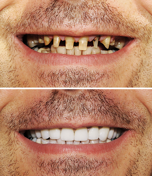 before & after dental implants in Notting Hill