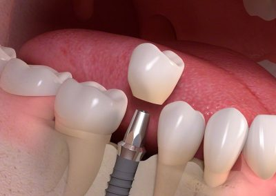 notting-hill-dental-Implant-borne_single-tooth_treatment_03